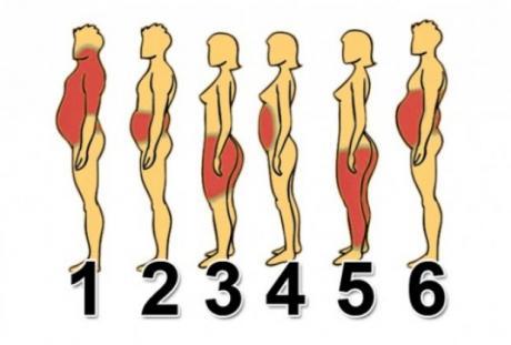 """2. затлъстяване """"нервен стомах"""" Този тип затлъстяване е предизвикан от"""