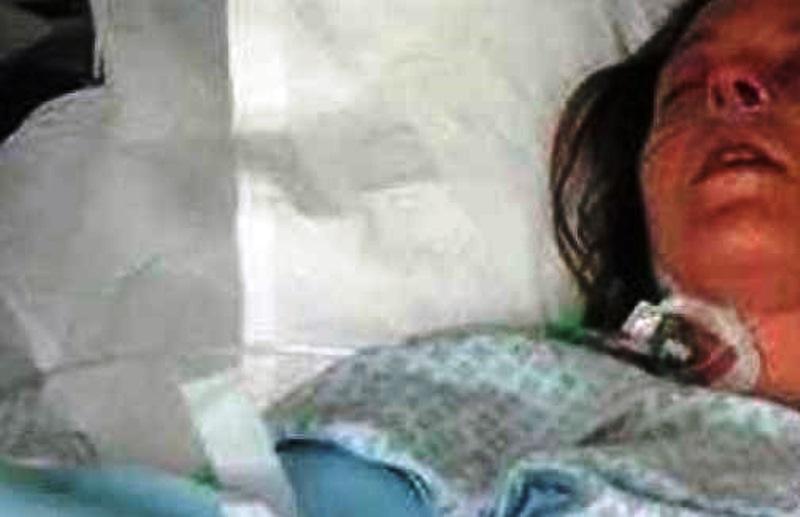 За да й спасят живота, я поставили в изкуствена кома,