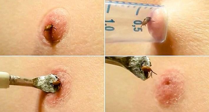 Особено опасно е заболяванетоенцефалит, причинявано от тези неприятни насекоми. Повечето