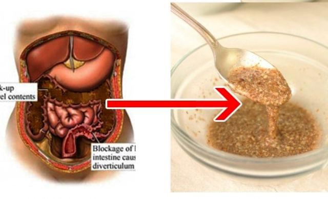 Този метод позволява бързо регулиране на теглото, както и изгарянето