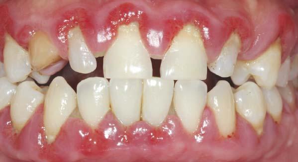 Най-често заболяването е предизвикано от занемарена хигиена на устната кухина