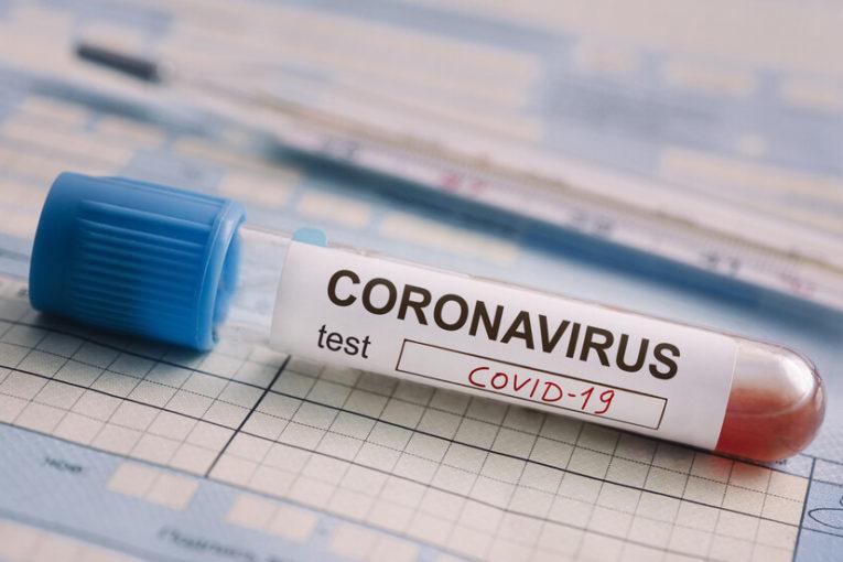 457 са потвърдените случаи на COVID-19 у нас по данни