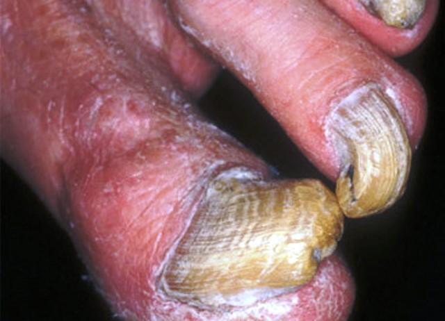 Как да се избавим от гъбички по ноктите СЪСТАВКИ: •вода •етерично масло