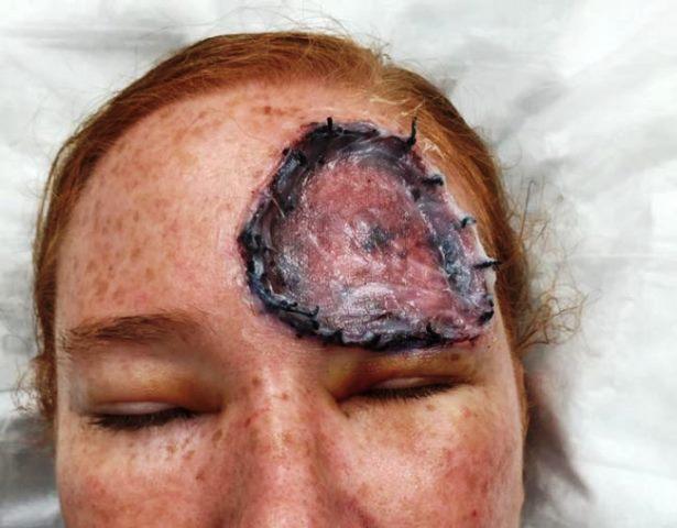 Отишла на лекар и се оказало изключително агресивна форма на