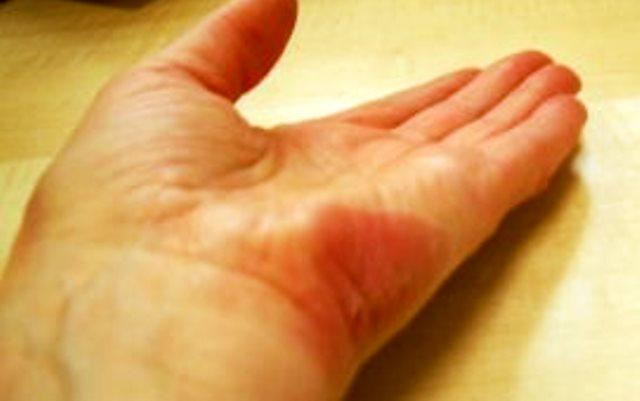 2. Мед при изгаряне– засегнатата зона се намазва с домашен
