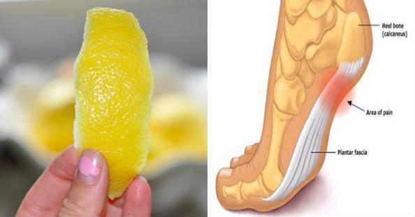 Този цитрусов плод е изключително полезен за лечението на редица