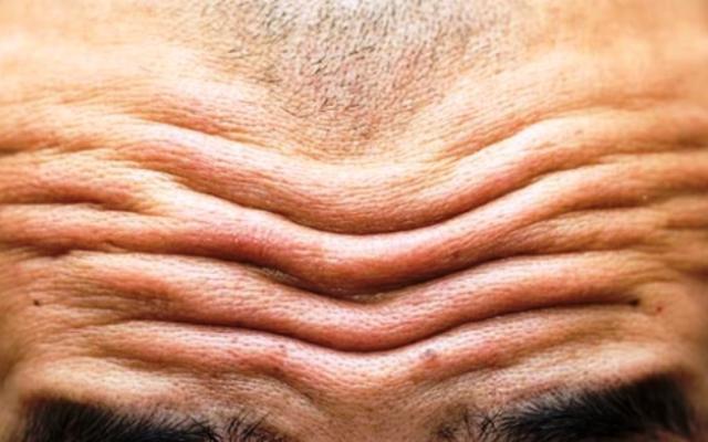 Според специалистите от Университета в Тулуза, подобни бръчки могат да