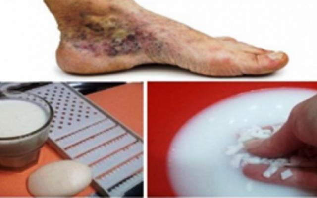 Тези отоци са резултат на дълго стоене или седене, заболяване